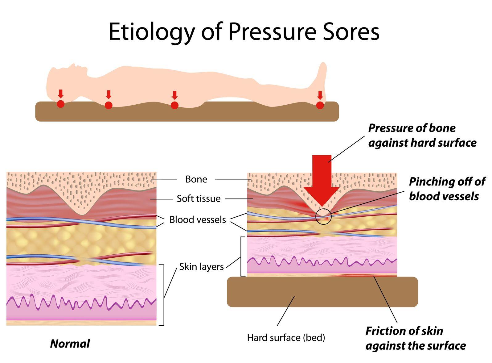 EtiologyPressureSores