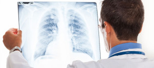 Chicago Mesothelioma Attorney