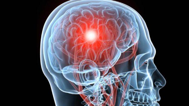 Chicago Brain Injury Attorney